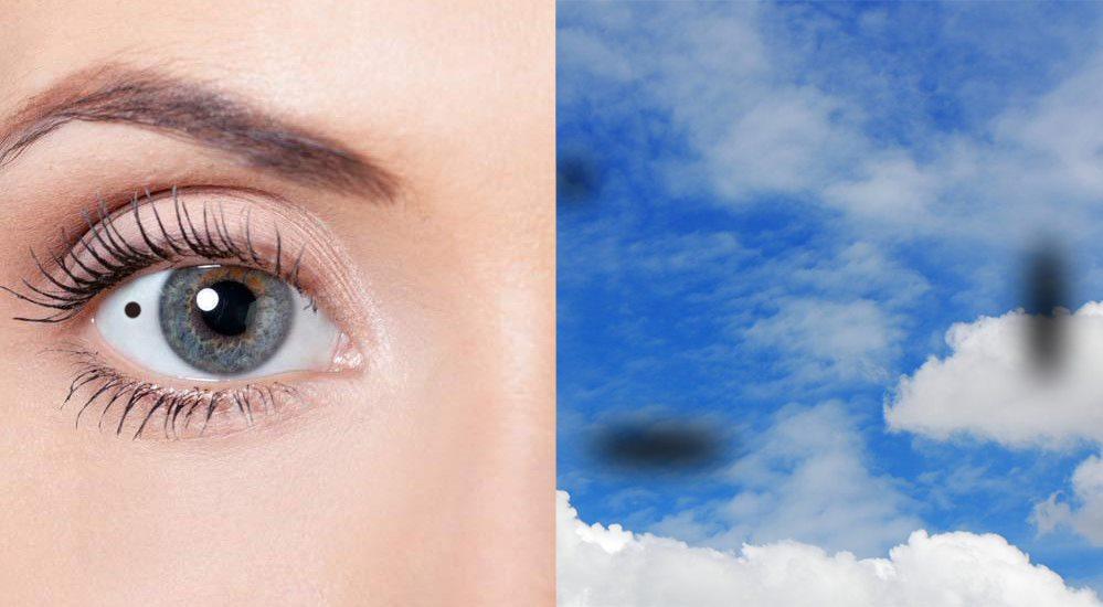 Chấm đen trong mắt có thể cảnh báo nhiều bệnh lý phức tạp